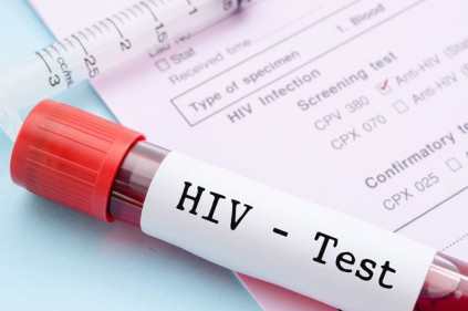 A huge number of HIV recorded in the Czech Republic